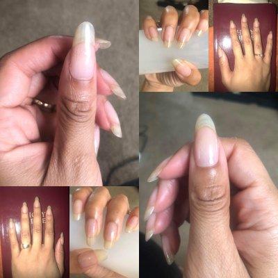 NailTriplets