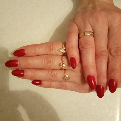 O-nails